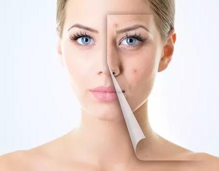cele mai bune produse pentru acnee